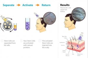 stemcell Support Life: How Stem Cell Research Can Make it Big