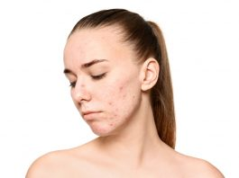 Young woman with pimples on her face