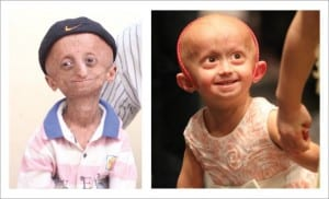 new-clues-about-progeria-a-disease-that-turns-kids-into-old-people-494104-3