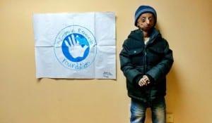 nihal-progeria.jpg.image.975.568