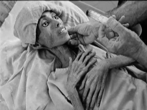 A Tuberculosis patient.