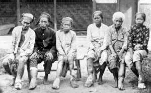 COLLECTIE_TROPENMUSEUM_Patiënten_met_zogenaamde_olifantsbenen_door_de_ziekte_Elephantiasis_te_Pelantoengan_residentie_Semarang_Java_TMnr_10006714