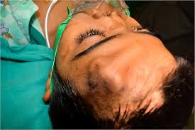 Indian Doctors Grow New Nose on Boy's Forehead nose