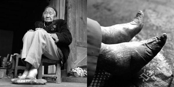 Last Glimpses of Foot Binding Tradition foot binding