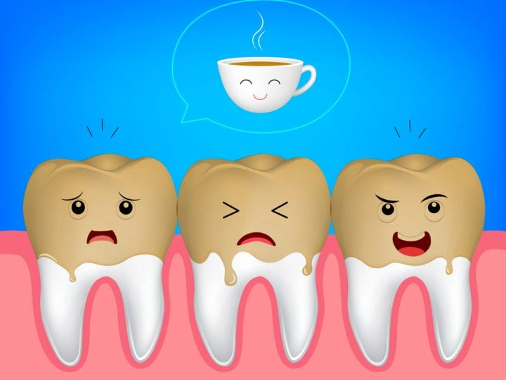Tooth Demineralization and Dental Stains: How Does It Affect You?