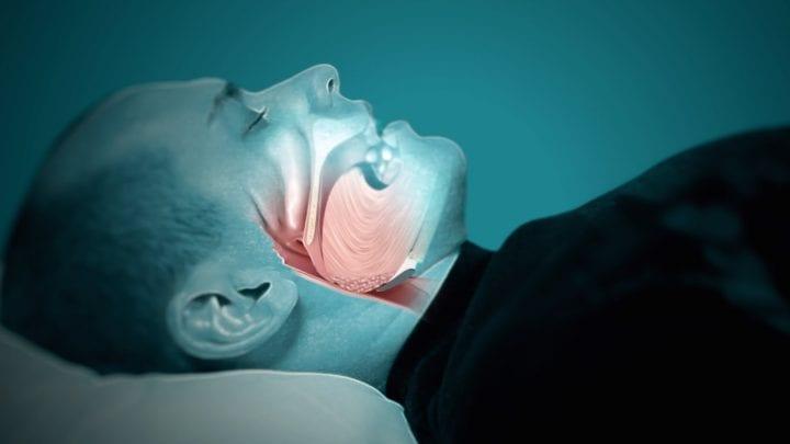Sleep Apnea: Death During Sleeping?