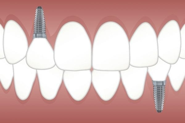 Do I Need Jaw Surgery? Understanding Common TMJ Treatments 29