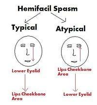 Hemifacial Spasm
