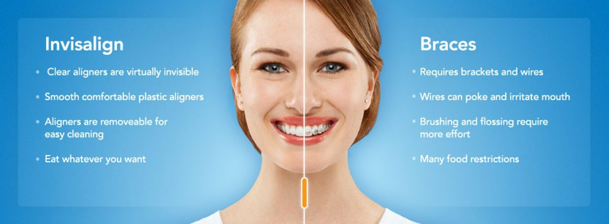 Hendra Hidayat Dental Clinic, Less Pain More Smile! – PUTRIKPM // a ...